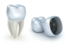 Porcelain Dental Crown, Baker City, OR Dentist, Dr. Hayden