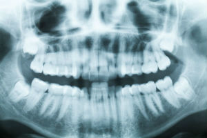 Digital Dental X-Rays, Dr. Hayden, Baker City, OR Dentist
