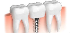 Implants provided, Mountain Valley Dental, Baker Ciity, OR Dentist Dr. Hayden