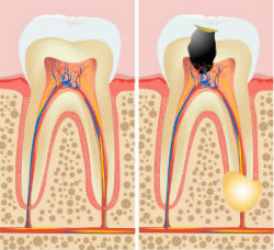 Root Canals at Mountain Valley Dental Group, Dr. Hayden, Baker City Dentist