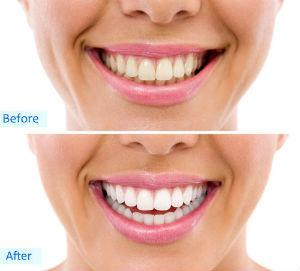 Whitening from Mountain Valley Dental, Baker City, OR Dentist, Dr. Hayden